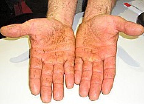 Wie man der Haut bei Ekzemen hilft